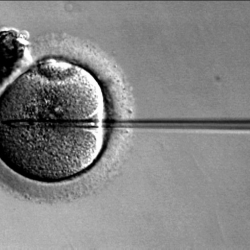 What's the Problem with IVF? image
